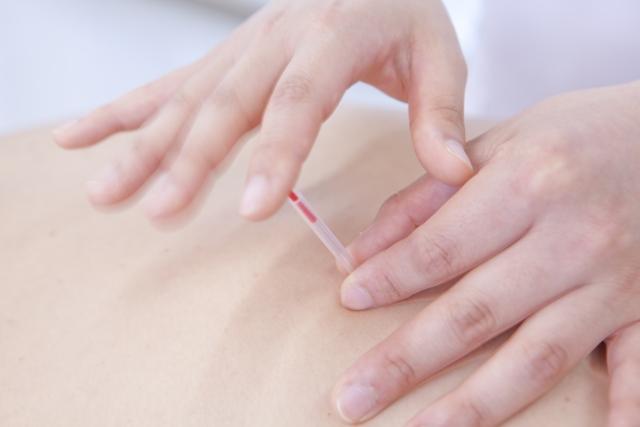 向日市で腰痛を含む慢性の疼痛で悩む方へ~痛みの少ないやさしい施術を提供~