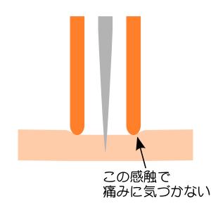 鍼管の仕組み