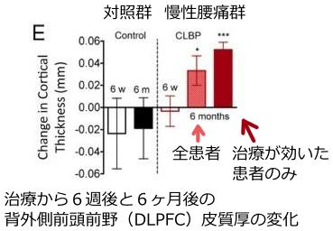治療後のDLPFCの変化