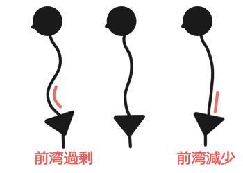腰椎前湾・過剰と減少
