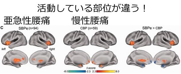 亜急性腰痛と慢性腰痛のfMRI比較