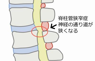 脊柱菅狭窄症とは