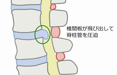 椎間板ヘルニアの図