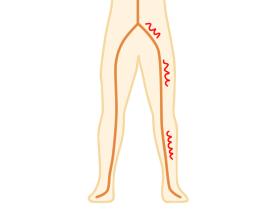 坐骨神経イメージ